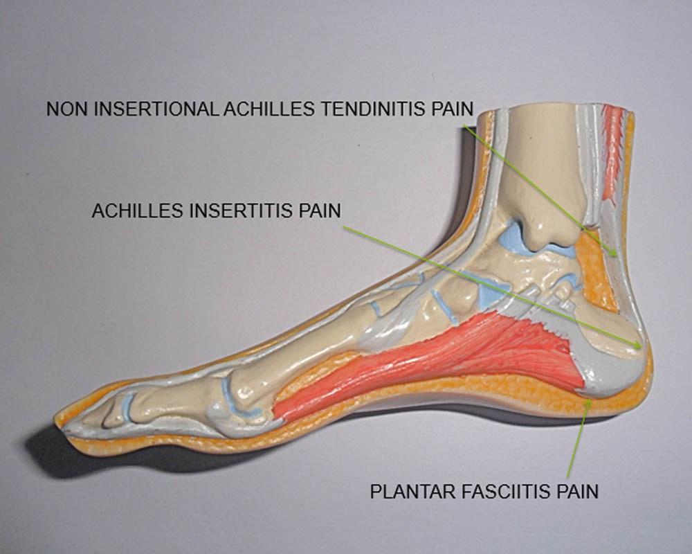 Heel Pain Image